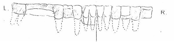 'Lower Jaw, seen from the back.'